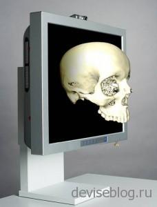 Применение технологии 3D в медицине