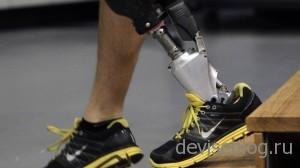 iWalk - Робот протез