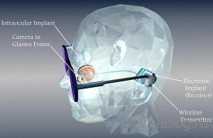 Глазной протез с возможностью передачи изображения прямо в мозг
