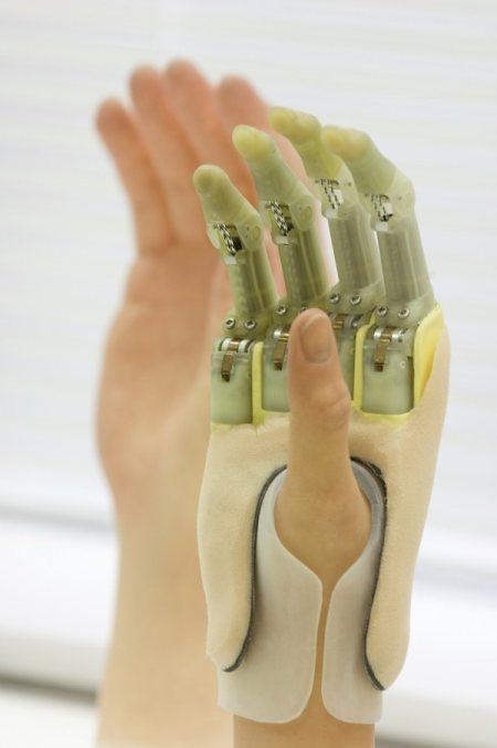 Бионические протезы уже реальность